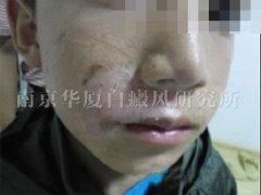 <b>【NO.59990病例】10岁孩子选择南京华厦治好了唇部白斑</b>