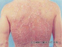 引发背部白癜风的病因有哪些