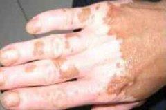 手部出现白癜风的发病这可能是什么原因呢