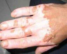 孩子的手掌上出现一块块的白癜风可以治吗